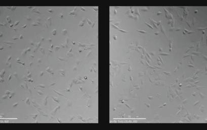 줄기세포 배양기술