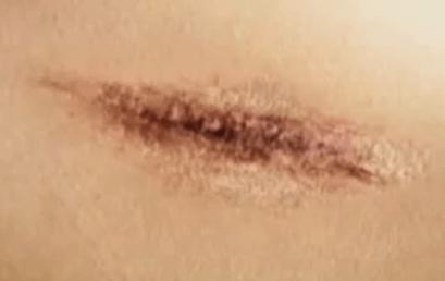 상처세포손상-피부세포 재생